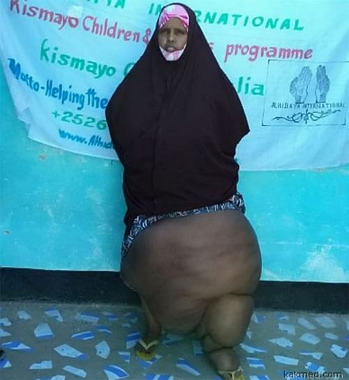 Женщина-слон из Сомали