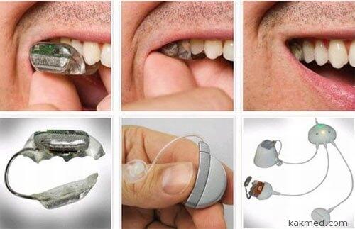 Слуховая фикса на зуб