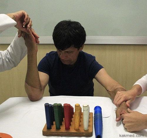 Реабилитация после пересадки рук