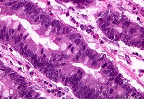 Клетки рака желудка