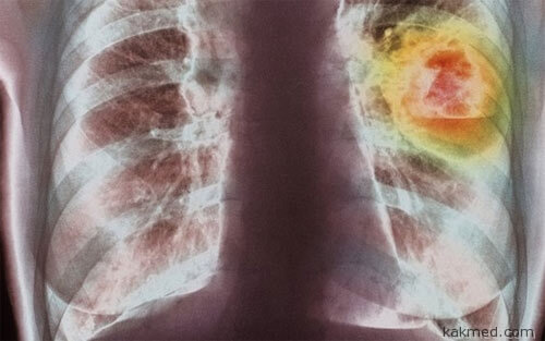 Рак легких - самый распространенный