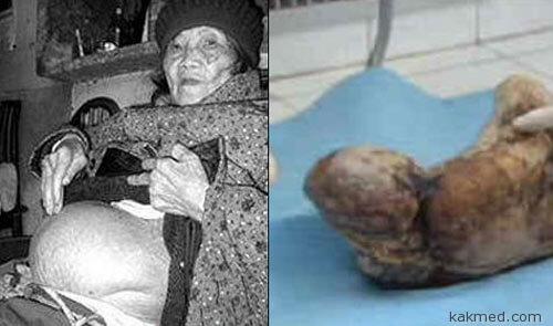 В Китае бабушка родила камень