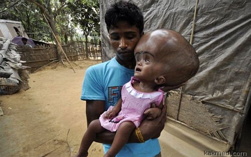 Руна Бегум до операции