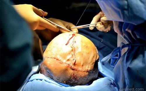 Восстановление черепа