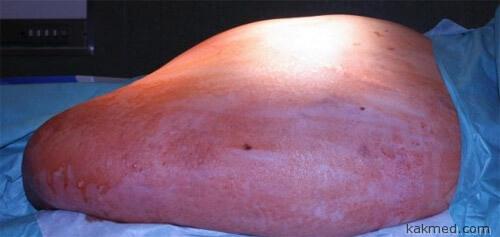 Опухоль 36 кг