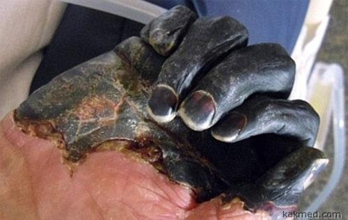 Пальцы больного чумой