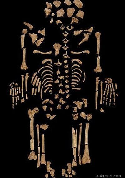 Скелет с раком