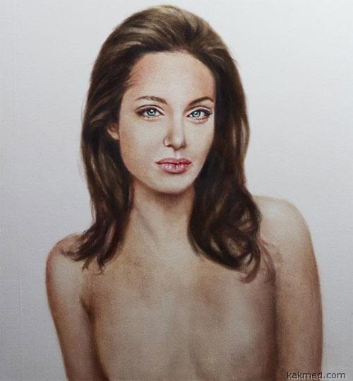Анджелина Джоли после операции