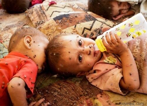 Несчастные дети Пакистана