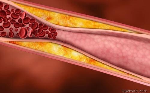 Закупорка кровеносного сосуда жиром