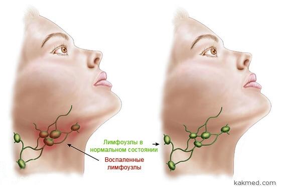 воспаленнеые лимфоузлы на шее