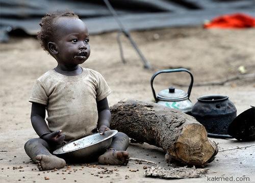 Южносуданский голодающий ребенок
