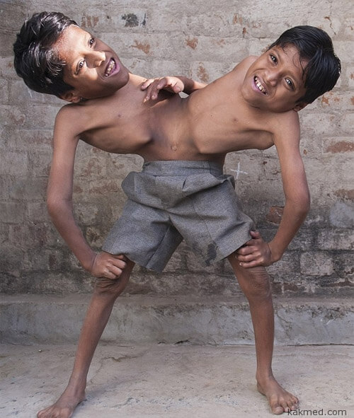 Сиамские близнецы Саху