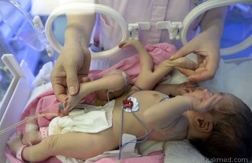 Мальчик с 4 руками и 4 ногами в Китае