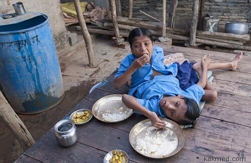 Сиамские близнецы кушают