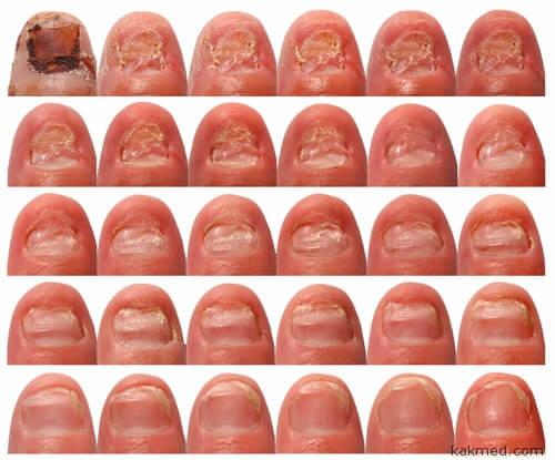 разные стадии грибка на ногтях ног