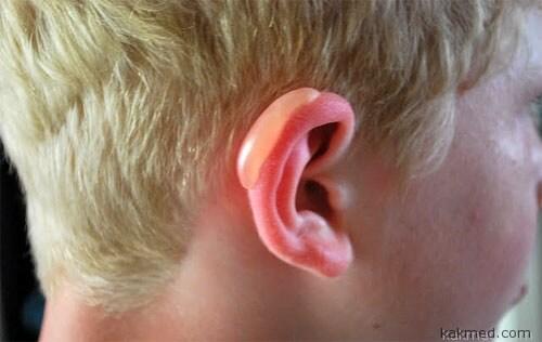 Уши обгорели