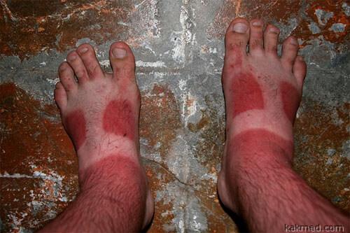 Сгорели ноги