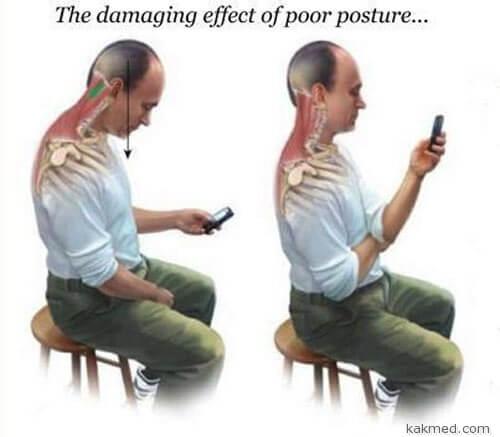 Смартфонная болезнь позвоночника
