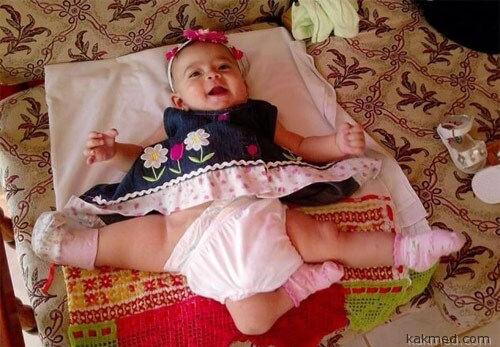 Девочка с тремя ногами