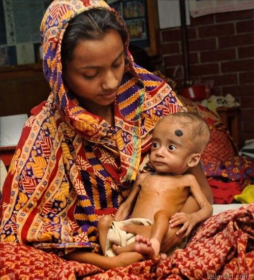 Недоедание в Бангладеш