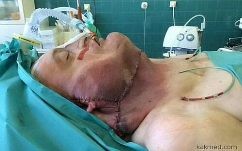 Операция по удалению опухоли на шее