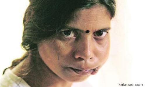 Сунита - лицо противотабачной кампании