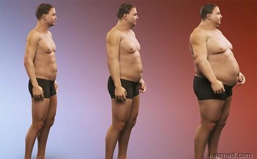 Ожирение смертельно