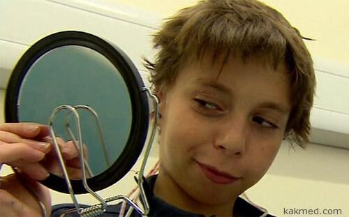 Новые уши для 9-летнего мальчика