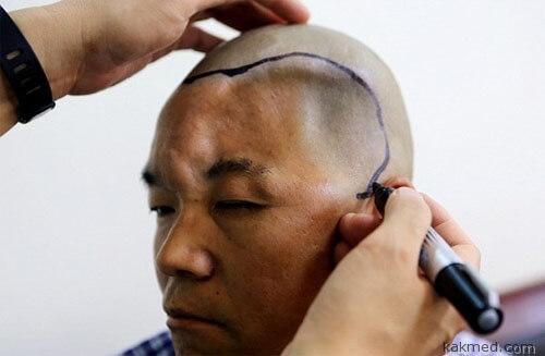Восстановление черепа в Китае