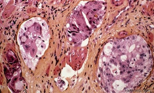 Рак желудка и нервы