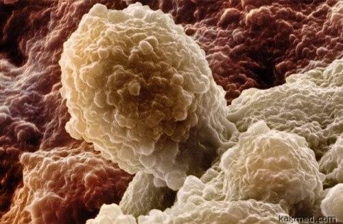 Рак простаты и нервы