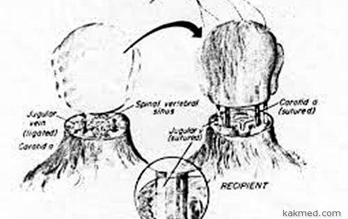 Методика пересадки головы