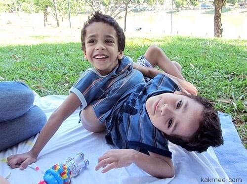 Бразильские сиамские близнецы