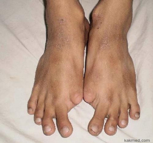 Мутация начинается с суставов пальцев ног