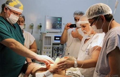 Подготовка к операции по разделению близнецов
