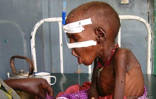 Несчастный сомалийский ребенок