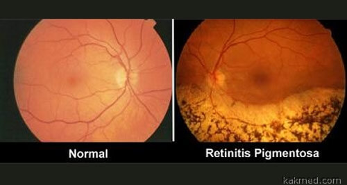 Пигментный ретинит и Виагра