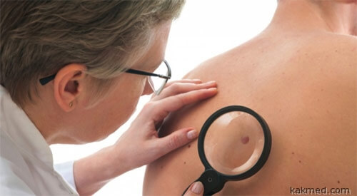 Виагра и рак кожи