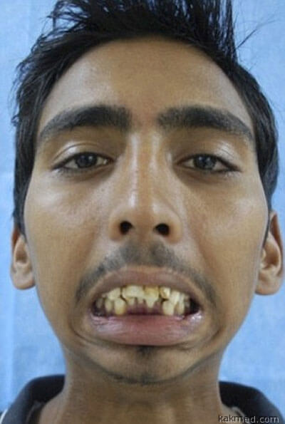 8 лет с закрытым ртом