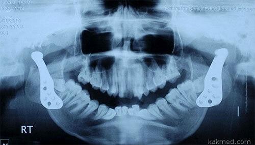 Замена челюстных суставов