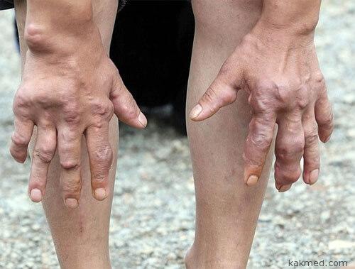 Деформация суставов, редкая болезнь