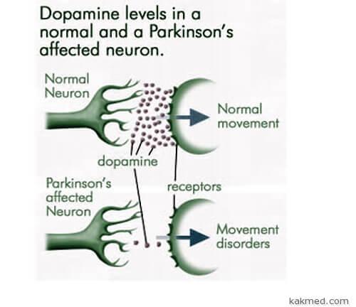 Уровни дофамина у здоровых и больных