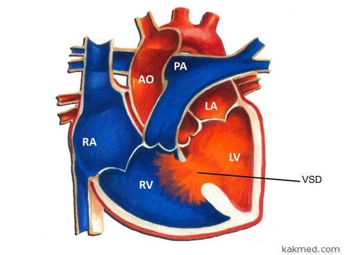 Врожденный порок сердца VSD
