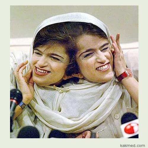 Сестры Биджани иранские сросшиеся близнецы