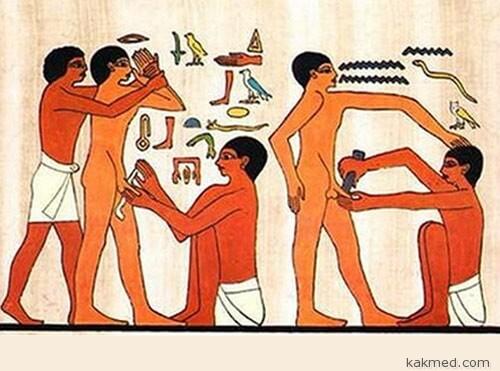 Традиция обрезания крайней плоти
