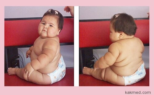 Девочка 10 месяцев 20 кг