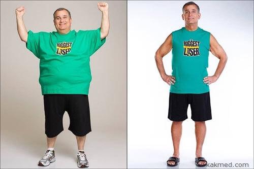 До и после операции на желудке