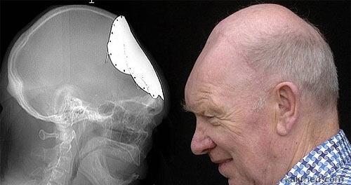 Винтажный протез черепа