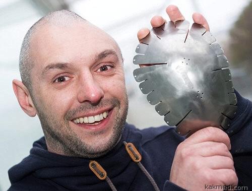 Титановый протез черепа